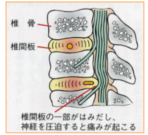 横須賀-整体-椎間板ヘルニア